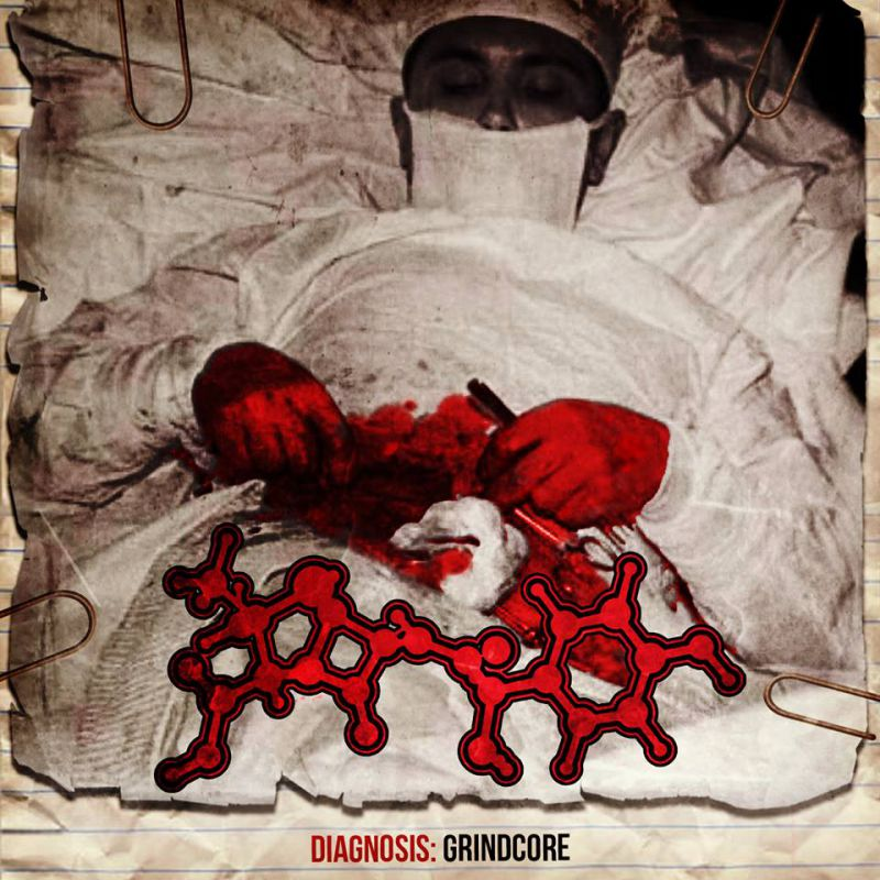 AMOCLEN Diagnosis: Grindcore